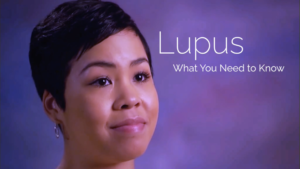 Lupus What You Need to Know